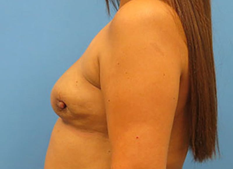 Breast Reconstruction - Flap Gallery - Patient 3831109 - Image 9