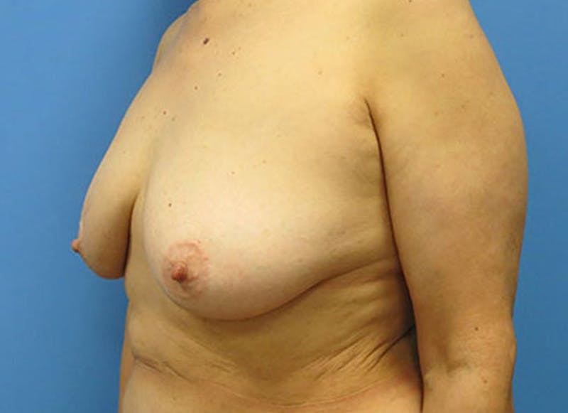 Breast Reconstruction - Flap Gallery - Patient 3831110 - Image 7