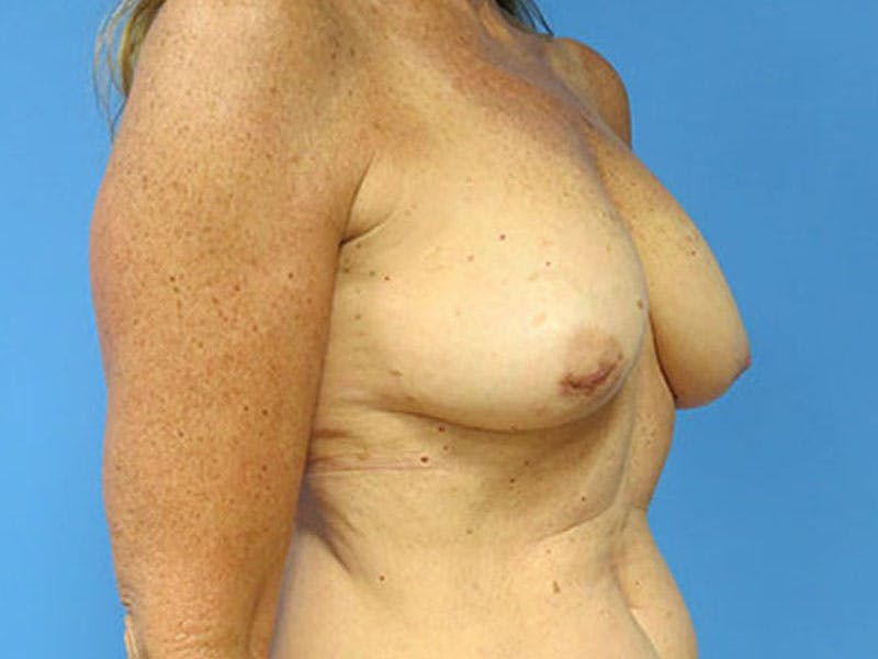 Breast Reconstruction - Flap Gallery - Patient 3831112 - Image 3