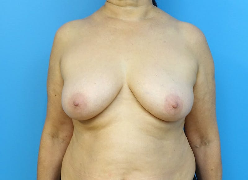 Breast Reconstruction - Flap Gallery - Patient 3831113 - Image 1