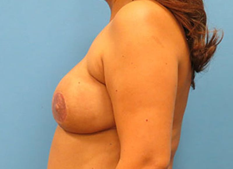 Breast Reconstruction - Flap Gallery - Patient 3831109 - Image 10