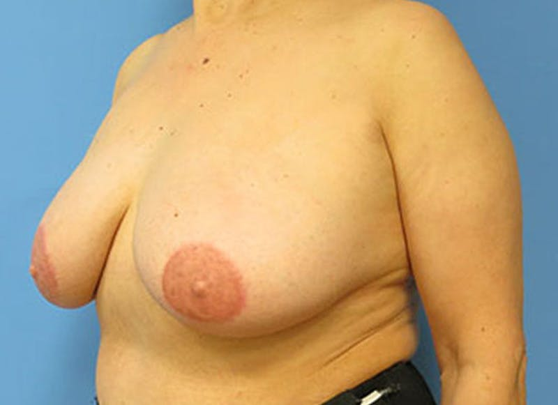 Breast Reconstruction - Flap Gallery - Patient 3831110 - Image 8