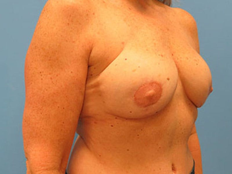 Breast Reconstruction - Flap Gallery - Patient 3831112 - Image 4