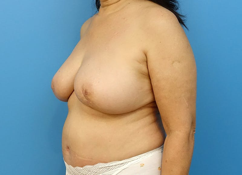 Breast Reconstruction - Flap Gallery - Patient 3831113 - Image 4