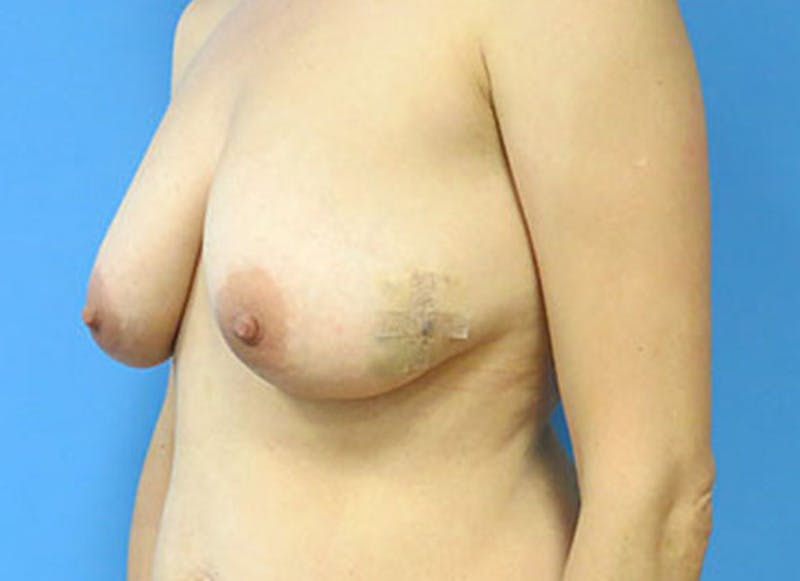 Breast Reconstruction - Flap Gallery - Patient 3831111 - Image 7