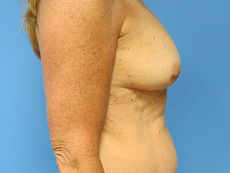 Breast Reconstruction - Flap Gallery - Patient 3831112 - Image 5