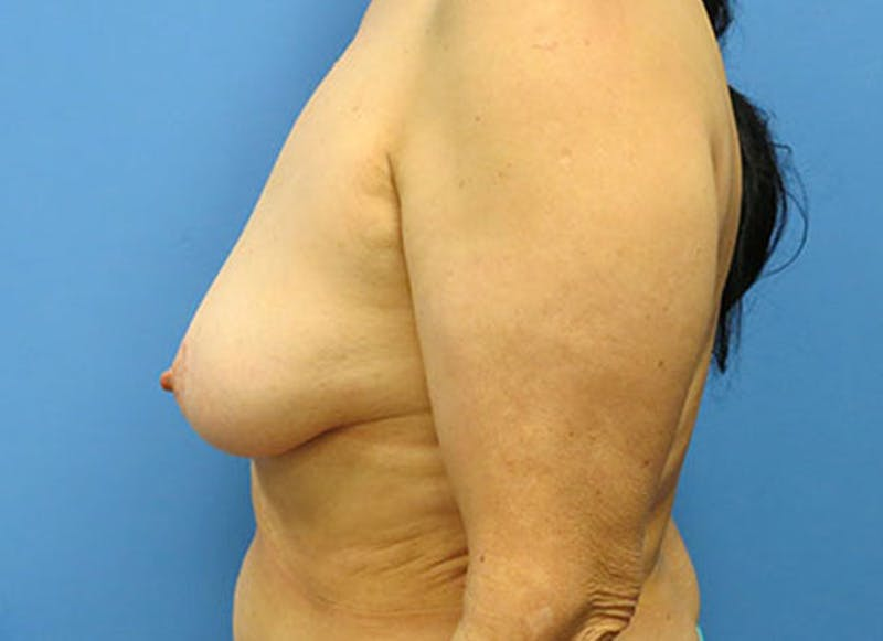 Breast Reconstruction - Flap Gallery - Patient 3831110 - Image 9