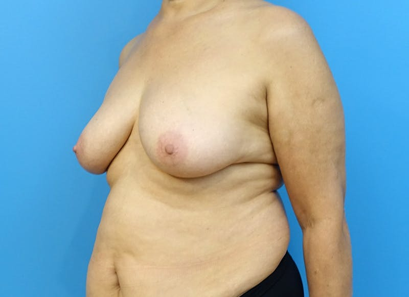 Breast Reconstruction - Flap Gallery - Patient 3831113 - Image 3