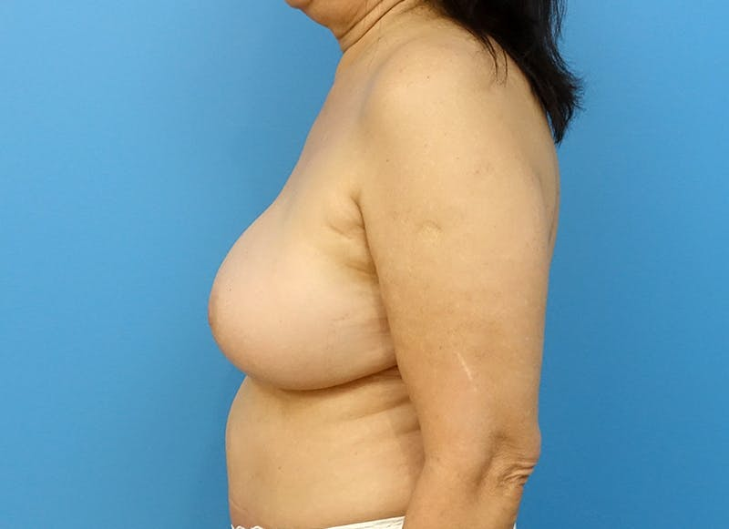 Breast Reconstruction - Flap Gallery - Patient 3831113 - Image 6
