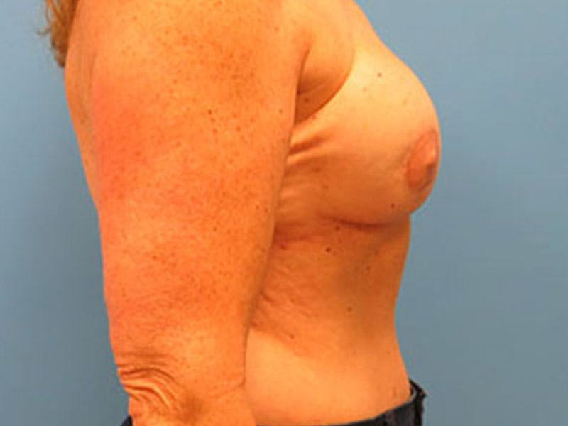 Breast Reconstruction - Flap Gallery - Patient 3831112 - Image 6