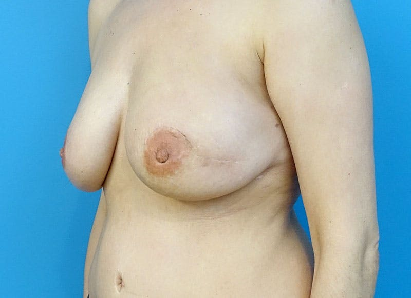 Breast Reconstruction - Flap Gallery - Patient 3831111 - Image 8