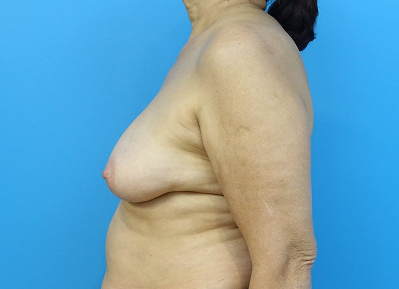 Breast Reconstruction - Flap Gallery - Patient 3831113 - Image 5