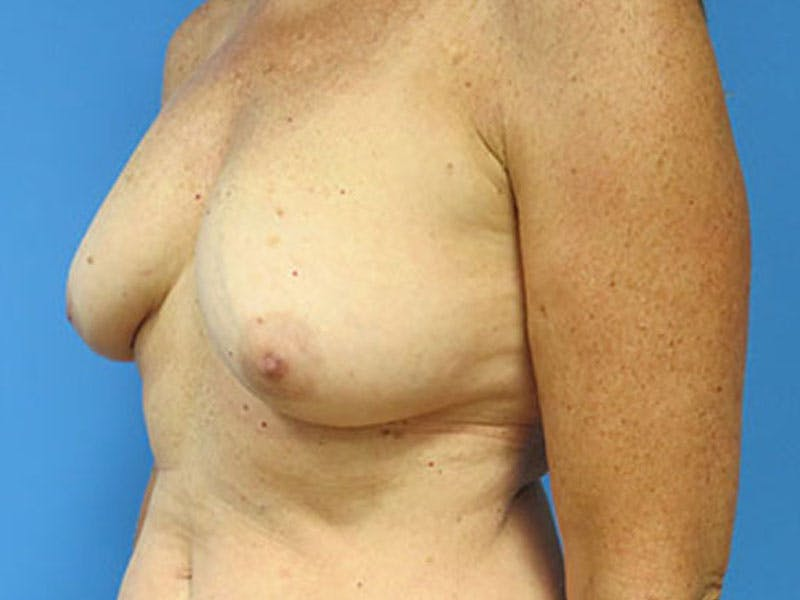Breast Reconstruction - Flap Gallery - Patient 3831112 - Image 7