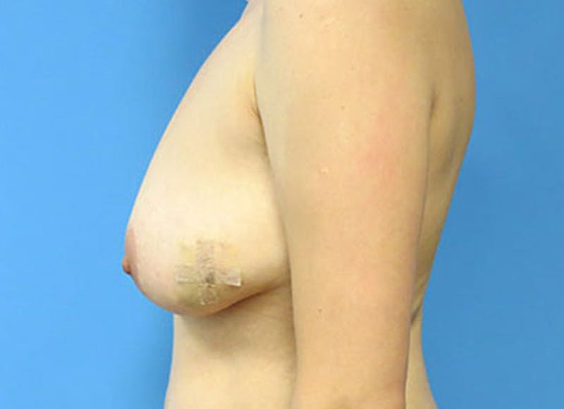 Breast Reconstruction - Flap Gallery - Patient 3831111 - Image 9