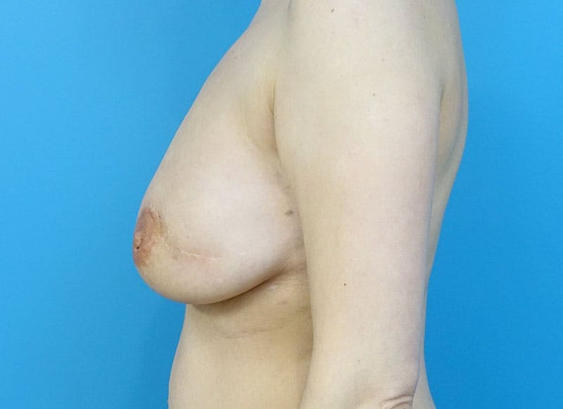 Breast Reconstruction - Flap Gallery - Patient 3831111 - Image 10