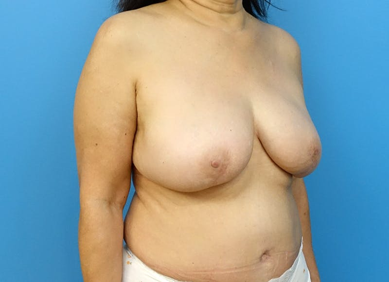Breast Reconstruction - Flap Gallery - Patient 3831113 - Image 8