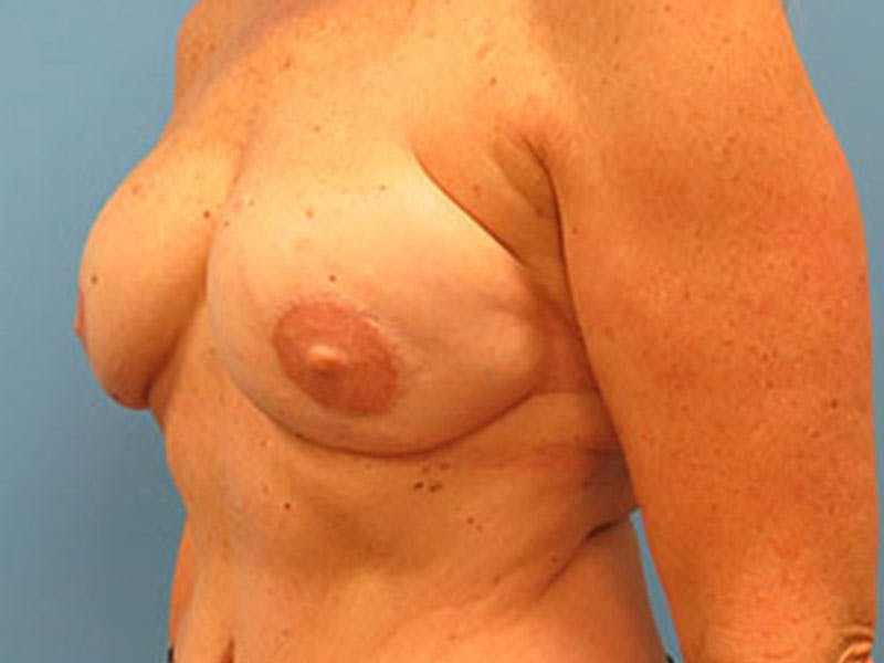 Breast Reconstruction - Flap Gallery - Patient 3831112 - Image 8