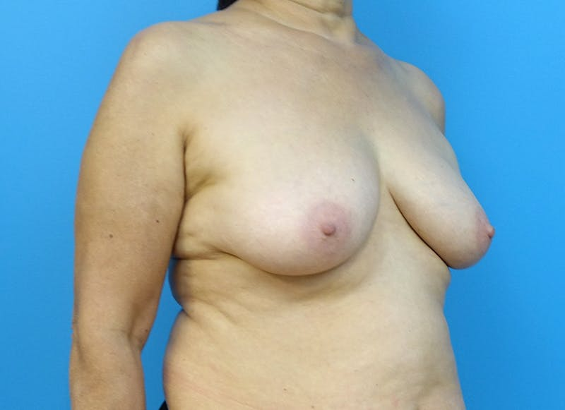 Breast Reconstruction - Flap Gallery - Patient 3831113 - Image 7