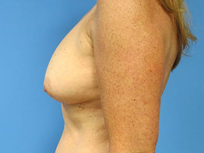 Breast Reconstruction - Flap Gallery - Patient 3831112 - Image 9