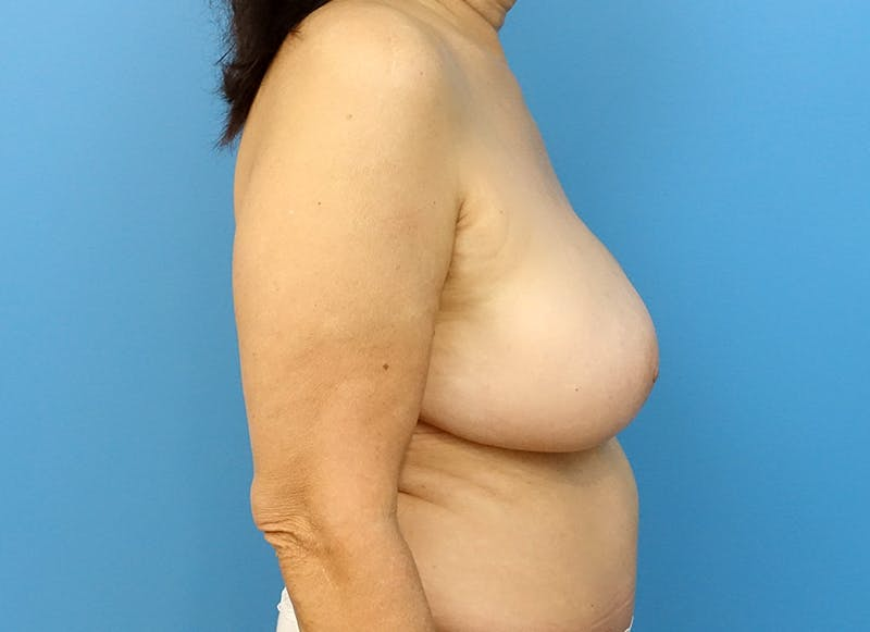 Breast Reconstruction - Flap Gallery - Patient 3831113 - Image 10