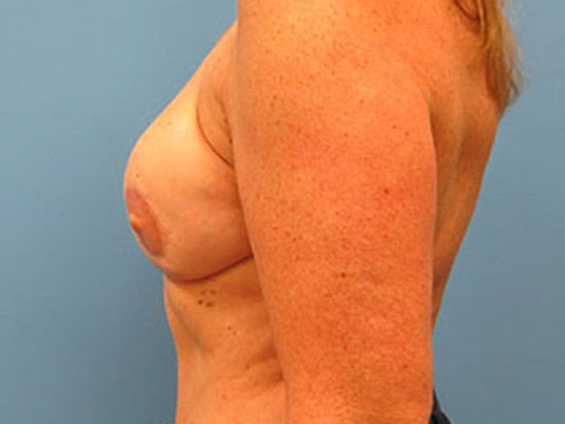 Breast Reconstruction - Flap Gallery - Patient 3831112 - Image 10