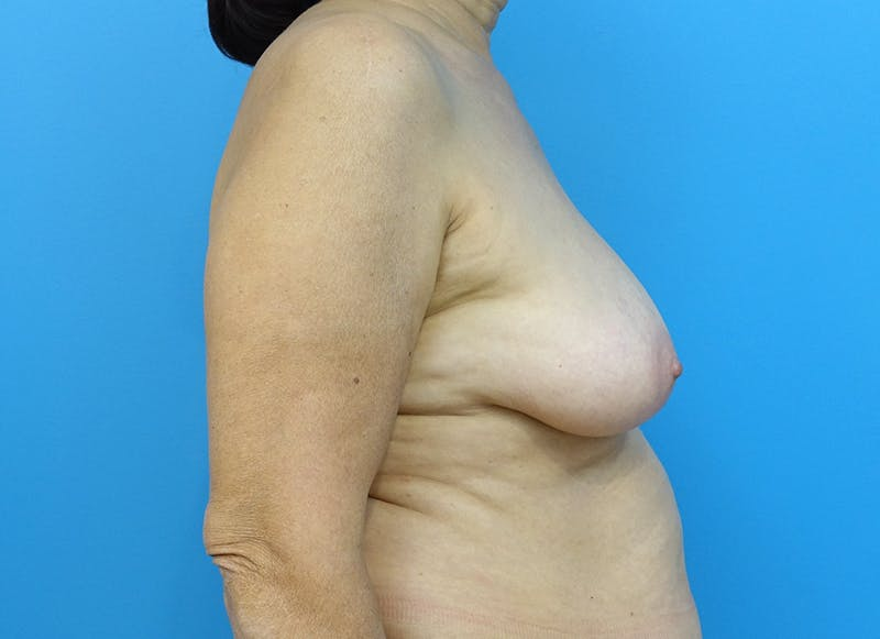 Breast Reconstruction - Flap Gallery - Patient 3831113 - Image 9