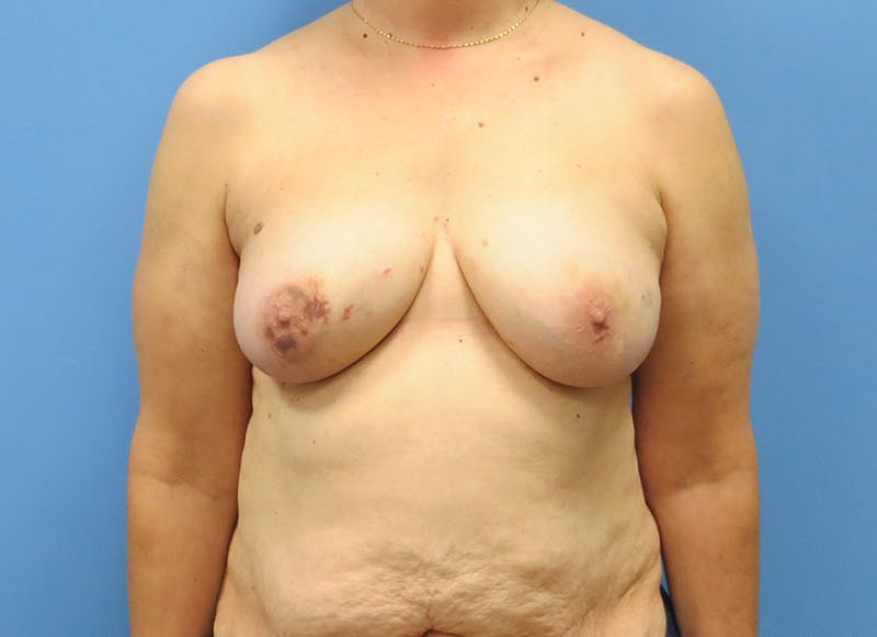 Breast Reconstruction - Flap Gallery - Patient 3831114 - Image 1