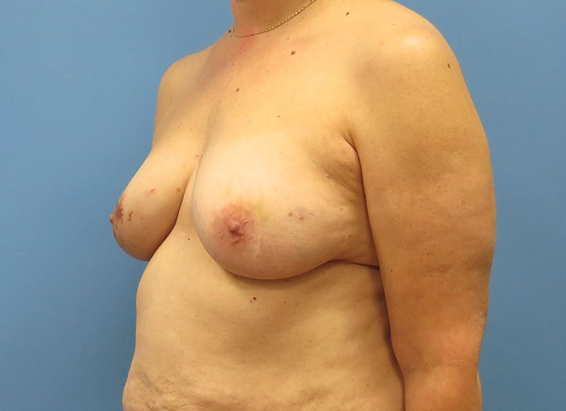 Breast Reconstruction - Flap Gallery - Patient 3831114 - Image 3