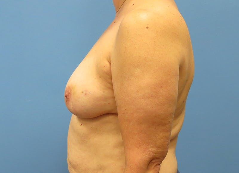 Breast Reconstruction - Flap Gallery - Patient 3831114 - Image 5