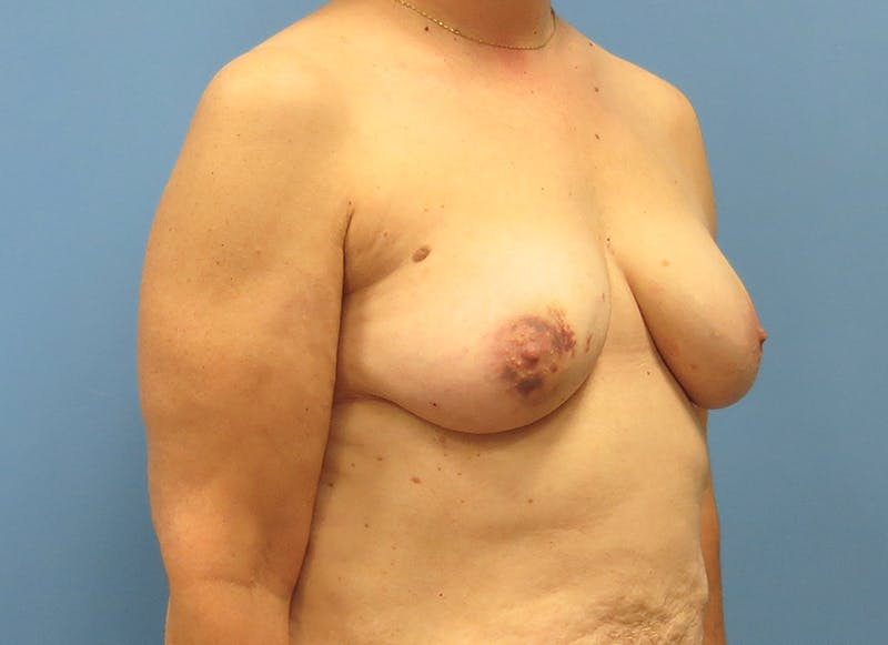 Breast Reconstruction - Flap Gallery - Patient 3831114 - Image 7