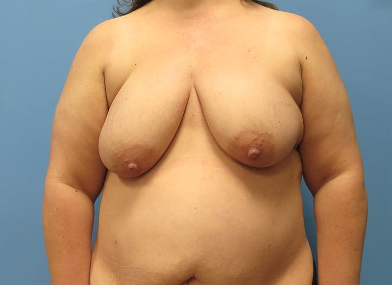 Breast Reconstruction - Flap Gallery - Patient 3831116 - Image 1