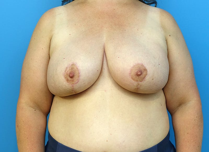 Breast Reconstruction - Flap Gallery - Patient 3831116 - Image 2