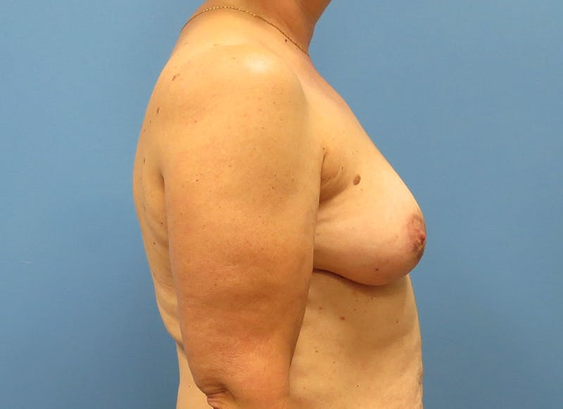 Breast Reconstruction - Flap Gallery - Patient 3831114 - Image 9