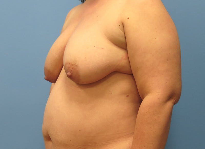 Breast Reconstruction - Flap Gallery - Patient 3831116 - Image 3