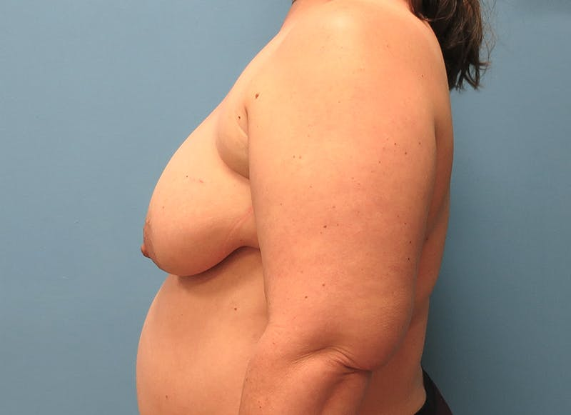 Breast Reconstruction - Flap Gallery - Patient 3831116 - Image 5
