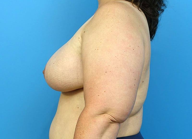 Breast Reconstruction - Flap Gallery - Patient 3831116 - Image 6