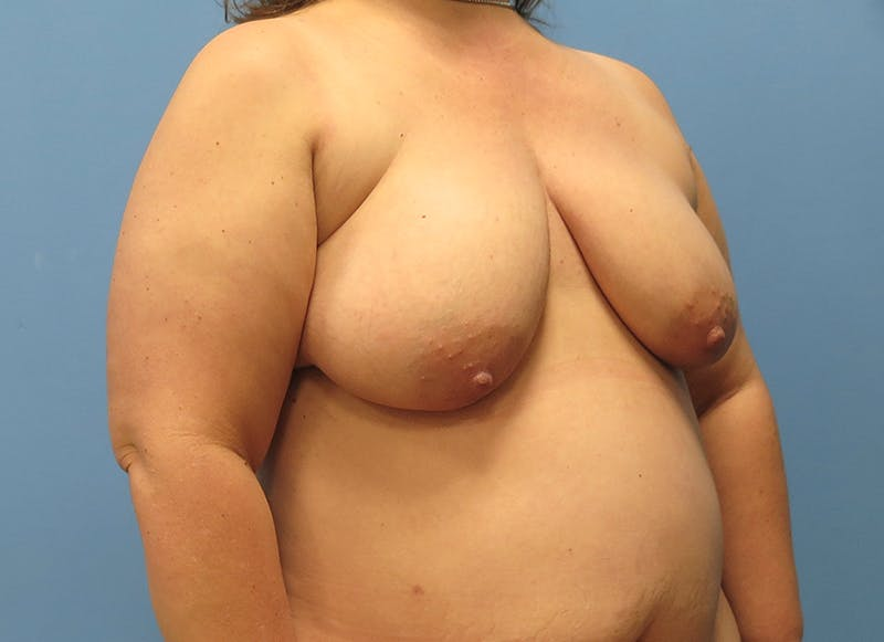 Breast Reconstruction - Flap Gallery - Patient 3831116 - Image 7