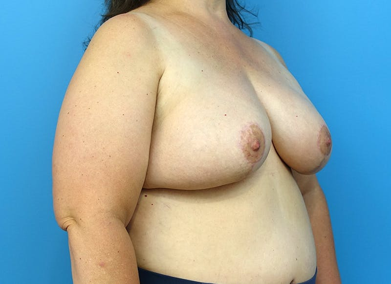 Breast Reconstruction - Flap Gallery - Patient 3831116 - Image 8