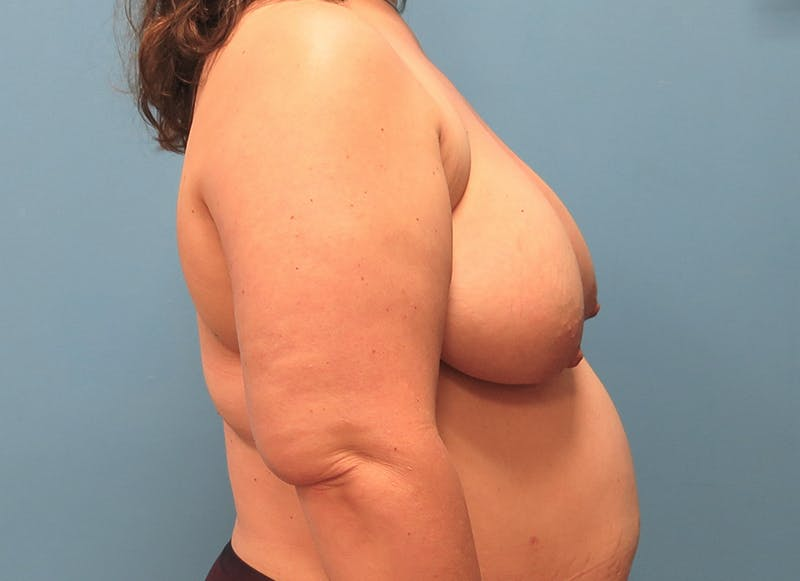 Breast Reconstruction - Flap Gallery - Patient 3831116 - Image 9