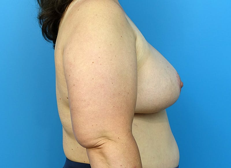 Breast Reconstruction - Flap Gallery - Patient 3831116 - Image 10