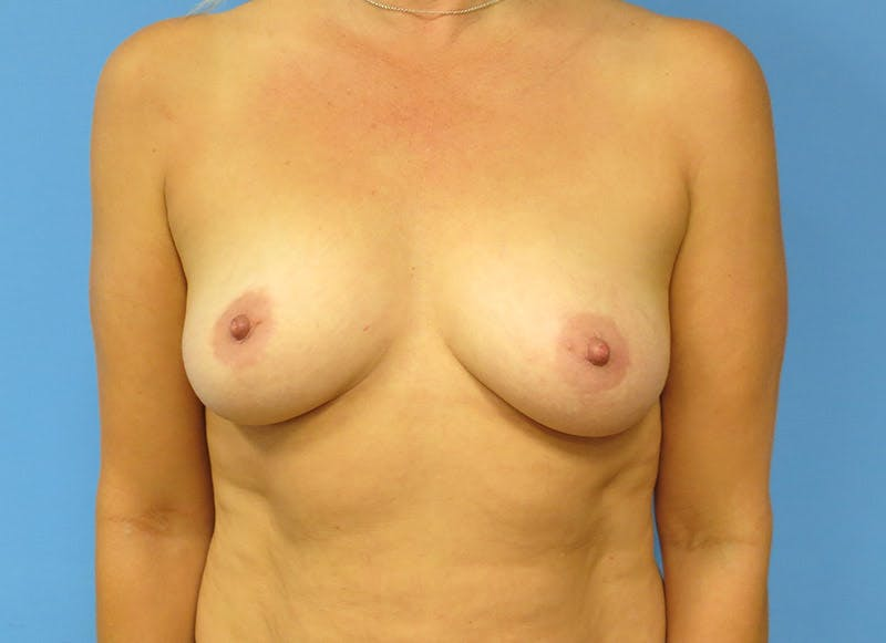 Breast Reconstruction - Implant Gallery - Patient 3833939 - Image 1