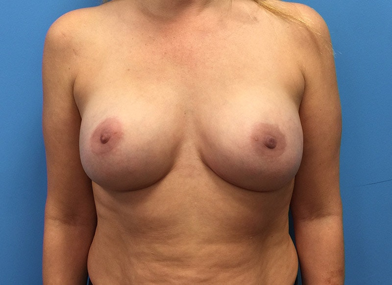Breast Reconstruction - Implant Gallery - Patient 3833939 - Image 2