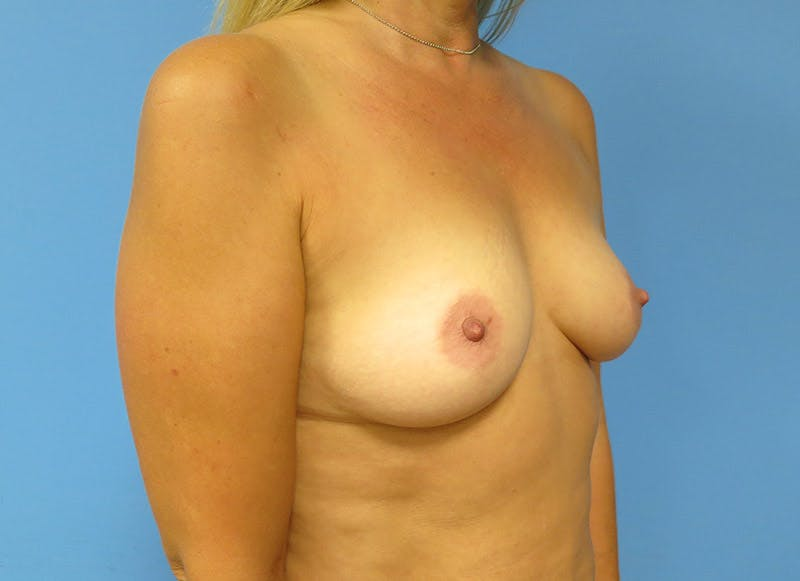Breast Reconstruction - Implant Gallery - Patient 3833939 - Image 3