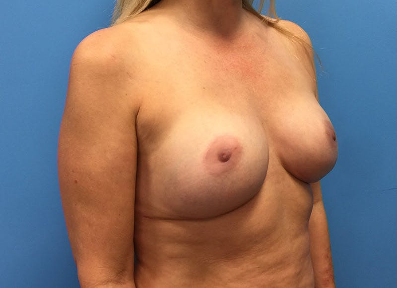 Breast Reconstruction - Implant Gallery - Patient 3833939 - Image 4