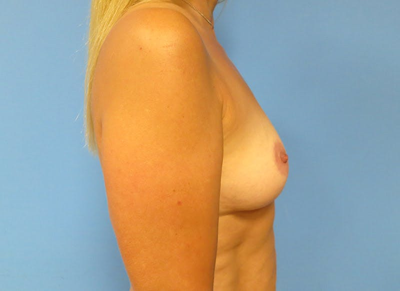 Breast Reconstruction - Implant Gallery - Patient 3833939 - Image 5