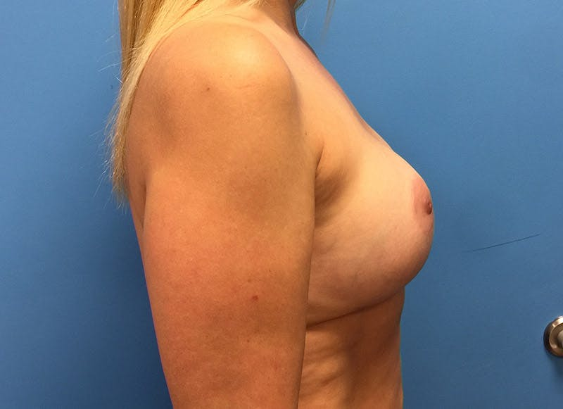 Breast Reconstruction - Implant Gallery - Patient 3833939 - Image 6