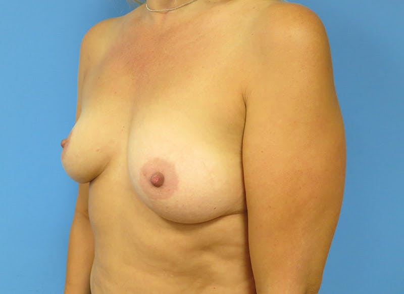 Breast Reconstruction - Implant Gallery - Patient 3833939 - Image 7