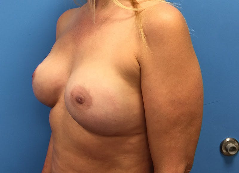 Breast Reconstruction - Implant Gallery - Patient 3833939 - Image 8