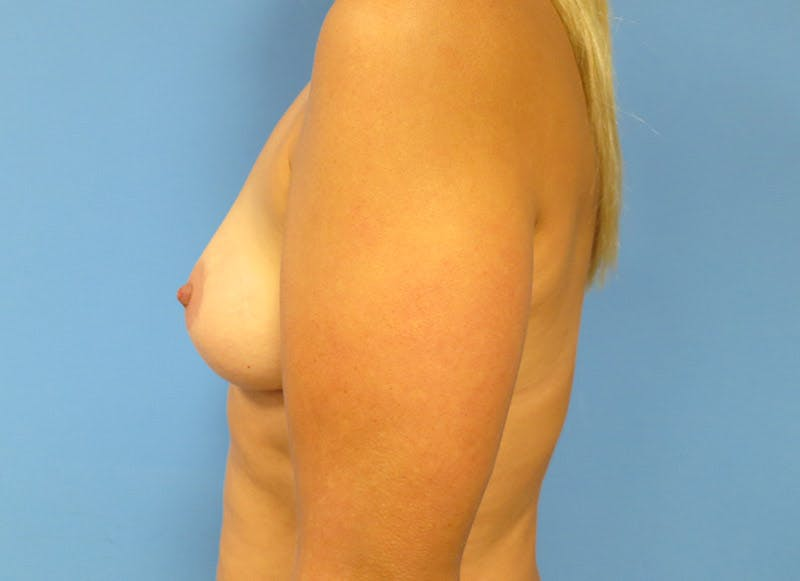Breast Reconstruction - Implant Gallery - Patient 3833939 - Image 9