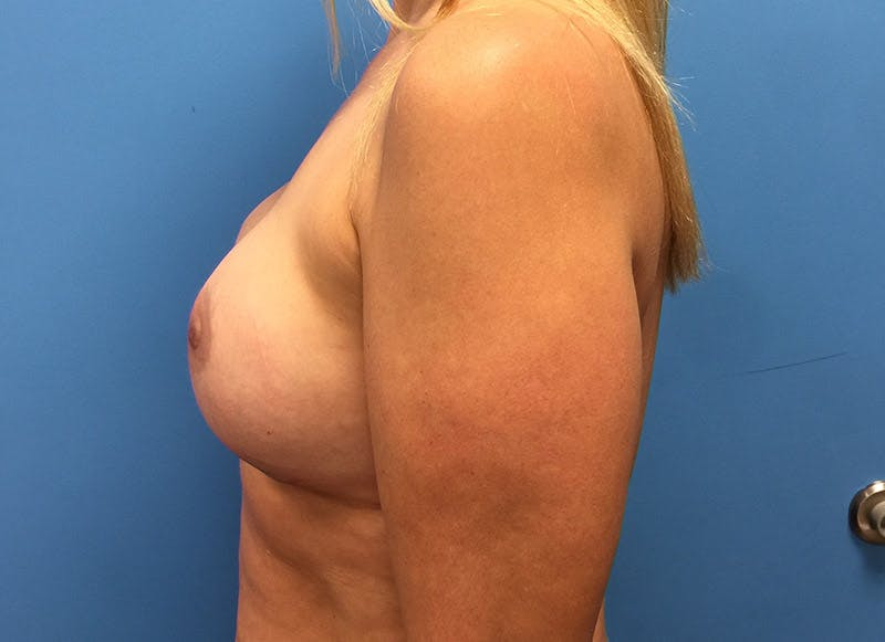 Breast Reconstruction - Implant Gallery - Patient 3833939 - Image 10